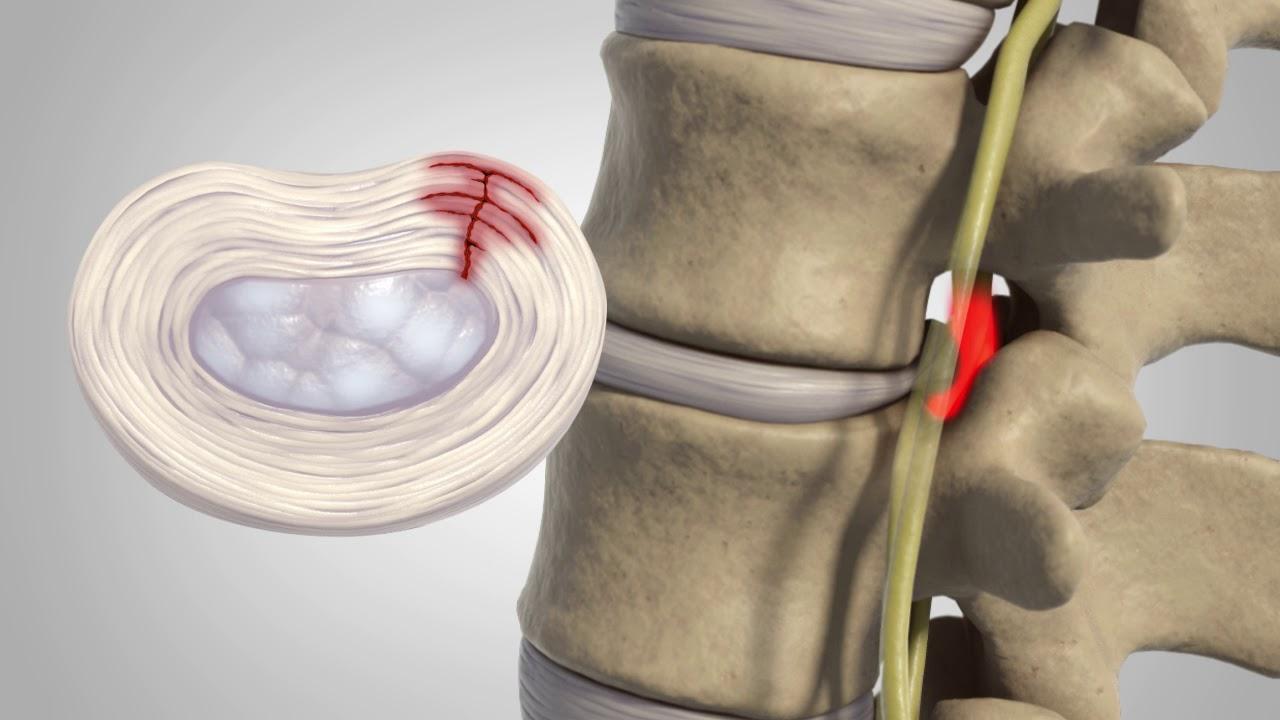 Ce este si cum apare un disc herniat?