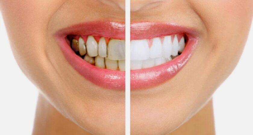 Cum poate fi tratata parodontoza?